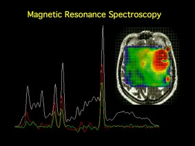 Image result for magnetic spectroscopy